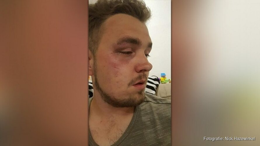 Mishandelde man uit Noord-Scharwoude na dagen ontslagen uit ziekenhuis
